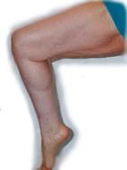 Loose Leg Skin